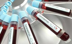 coronavirus-respiratory-infections-viruses-35YSU5C-2